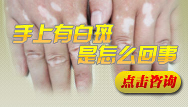 手背有白点是什么原因